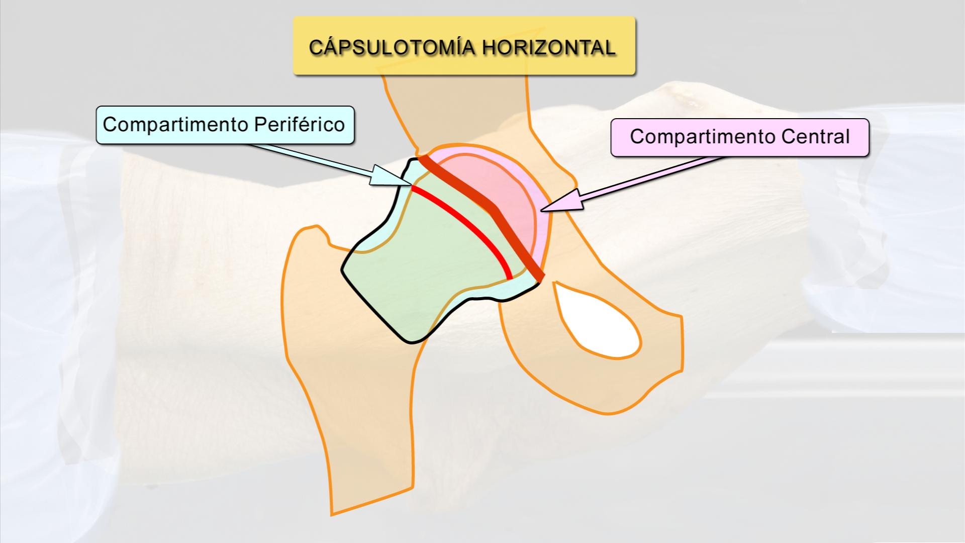 ATLAS de Anatomía Artroscópica - Video Completo